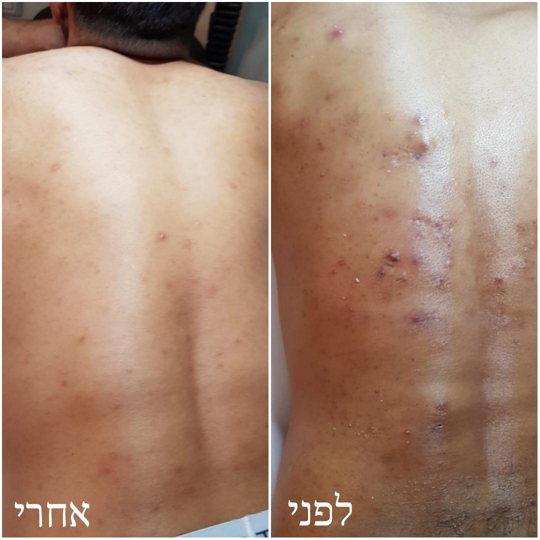טיפול בפצעים, אקנה בגב לפני ואחרי טיפול